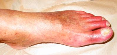 dålig blodcirkulation i foten