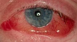 allergi kliar i ögonen