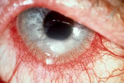huvudvärk röda ögon