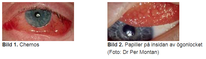 kliande ögon allergi