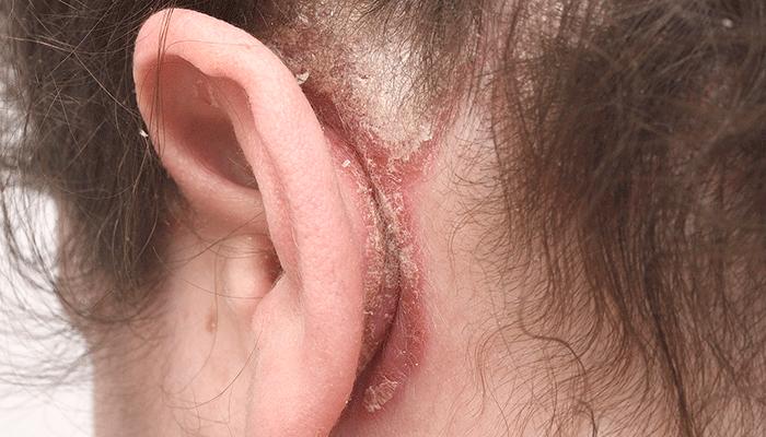 klåda bakom örat