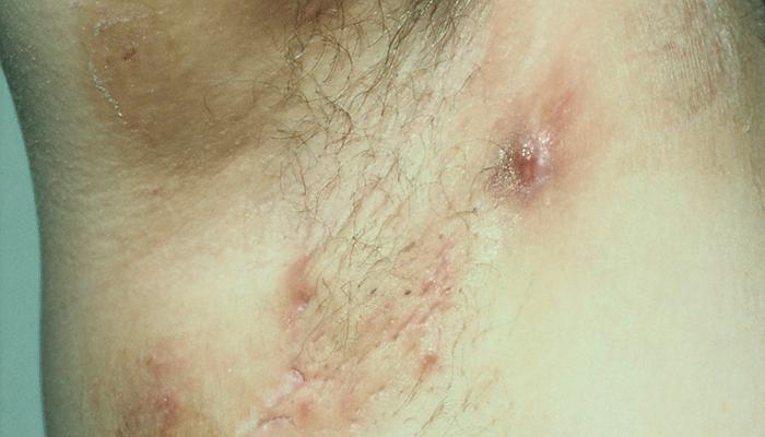 hidradenitis suppurativa behandling